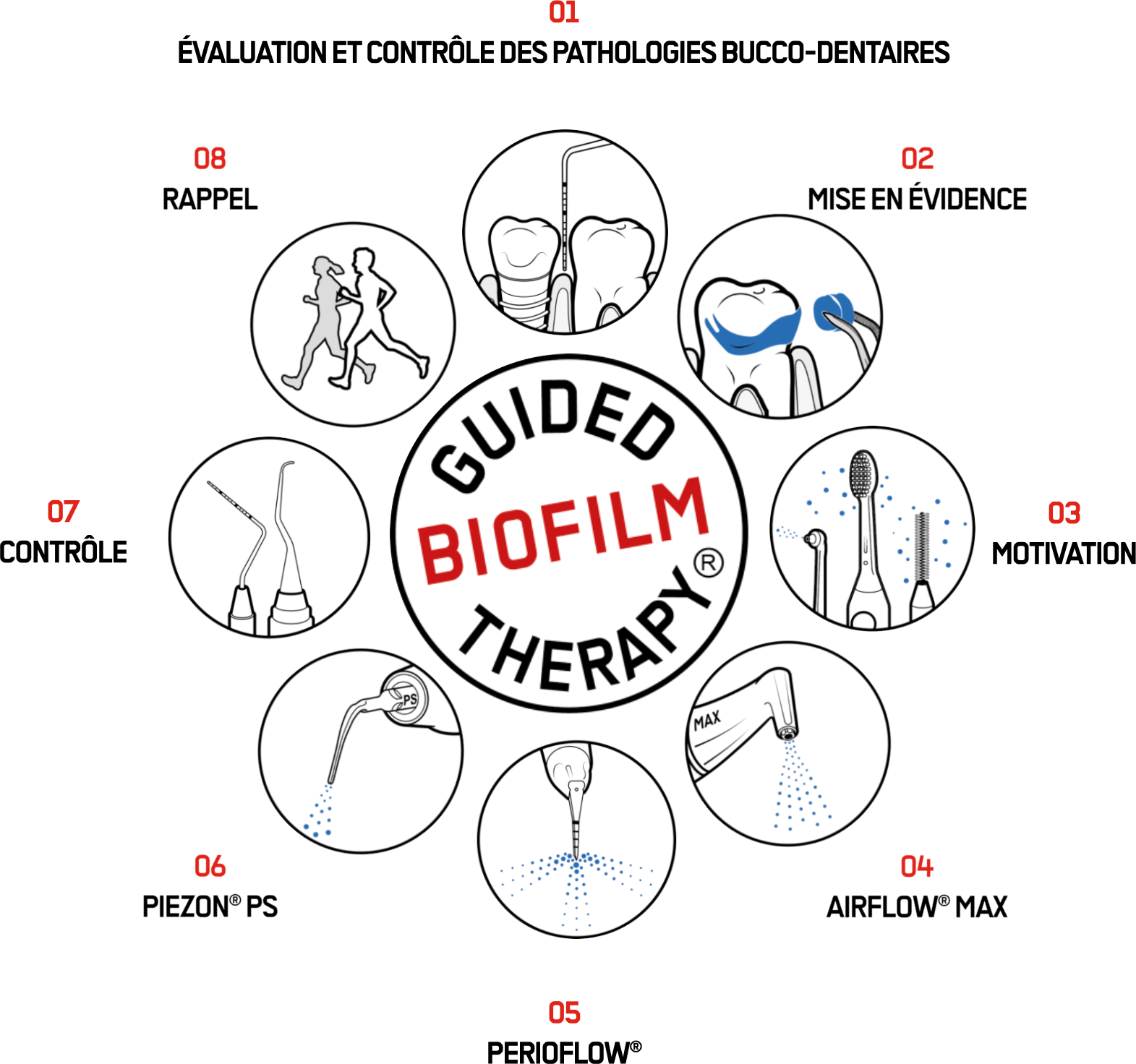 Guided Biofilm Theropy
